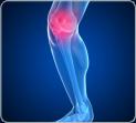 Как вылечить деформирующий остеоартроз коленного сустава. Тилайн-ЭМ